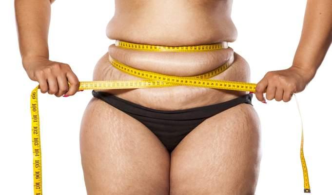 Krankenkasse hautstraffung nach gewichtsabnahme Fettschürze entfernen: