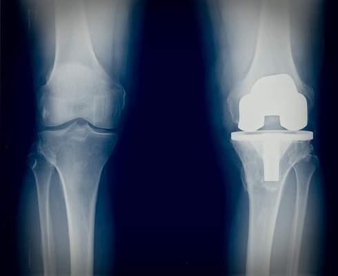 Knie krank lange schlittenprothese wie Schlittenprothese Knie