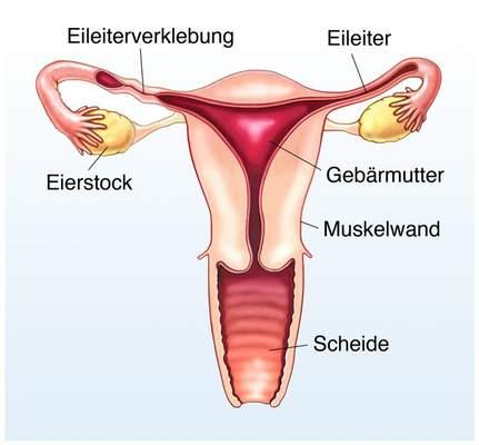 Freiwillig gebärmutter entfernen lassen Endometriumablation: Definition,