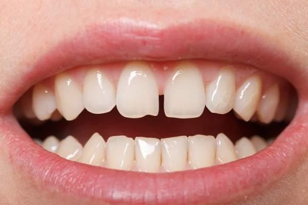 Schneidezähnen zwischen grosse zahnlücke den Kinnlade
